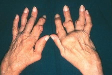 Ревматоидный артрит - что такое, виды, причины, симптомы и лечение