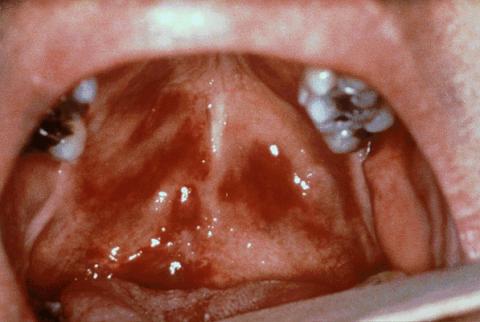Саркома Капоши - симптомы и методы лечения