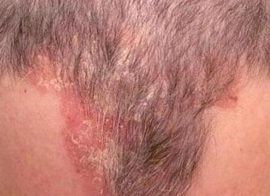 Себорея кожи головы фото 2