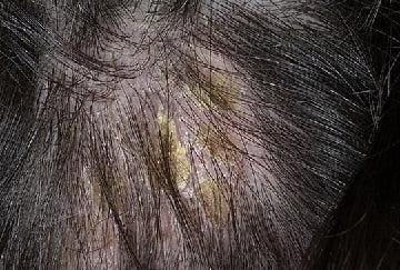 Себорея (перхоть): причины, симптомы, лечение жирной и сухой форм себореи