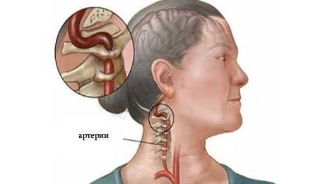 Синдром шейной артерии приводит кгибели мозга