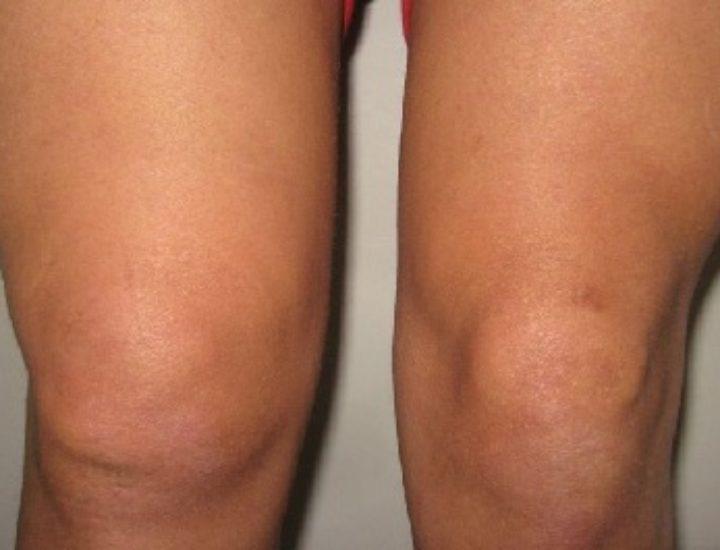 Синовит коленного сустава