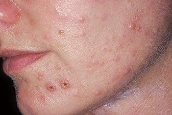 Стрептодермия у взрослых на лице фото 25