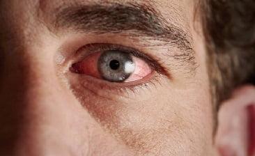 Передний увеит глаза