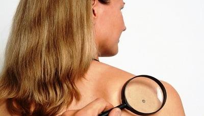 Вирус папилломы человека - лечение, фото, симптомы ВПЧ у мужчин и женщин