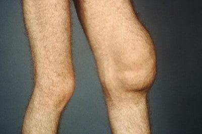 Ущемление синовиальной оболочки сустава проведение протезирования суставов нижних конечностей
