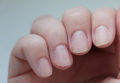 Почему ломаются и слоятся ногти: причины и лечение. Что