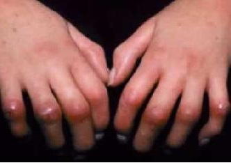 Склеродермия, что это такое? Фото, симптомы и лечение
