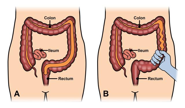 Синдром раздраженного кишечника - симптомы и лечение